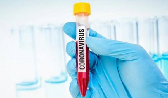 Число заболевших коронавирусом в России превысило 74 тысячи человек8
